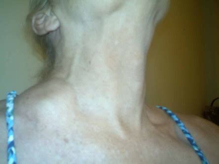 swelling left side of neck above collarbone lipoma in dogs causes related keywords lipoma in dogs