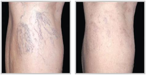 spider veins on the legs treatments 6 ways to get rid of spider veins on legs howhunter