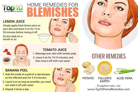 home remedies for blemishes top 10 home remedies
