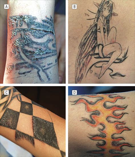 tattoo infection mycobacterium atypical mycobacteria infection following tattooing