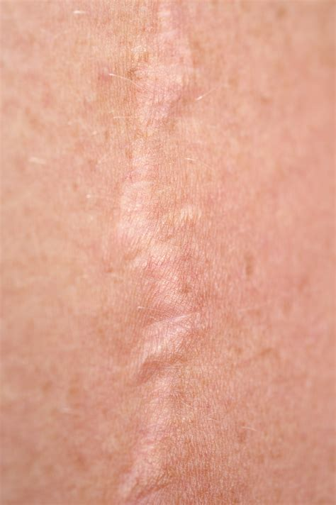 c section incision burning image gallery scar