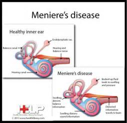 Search Menieres Disease Apple Cider Vinegar » Home Design 2017