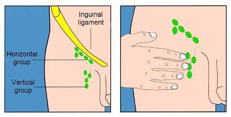 cadenas ganglionares palpacion british association of dermatologists patient