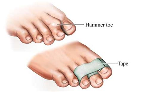 hammer toe taping the toe doctor