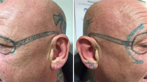 tattoo removal swansea drunken stag do wakes up with pair of bans