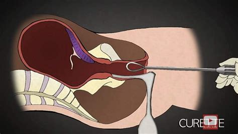painful  brutality process  abortion
