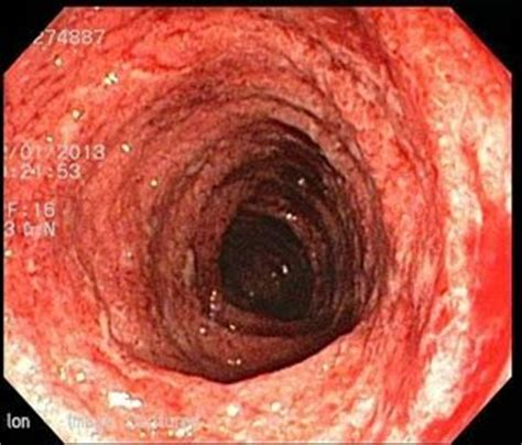 Ulcers Blood In Stool by How Frequent Are Blood In Stool When You Ulcerative