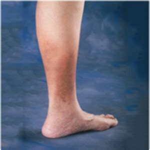 sore legs and after standing tired heavy legs may indicate cvi health24