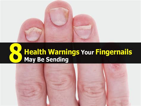 healthy nail beds 8 health warnings your fingernails may be sending