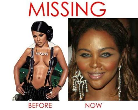 Plastic Surgery Is It Worth It by Embrace Plastic Surgery Was It Worth It