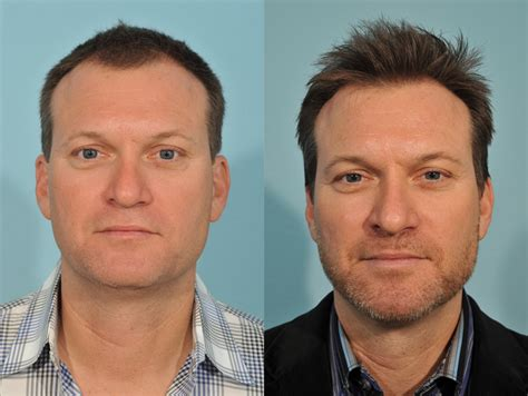 hair restoration before and after pictures clevens face hair transplant before after 2 jesse e smith md facs