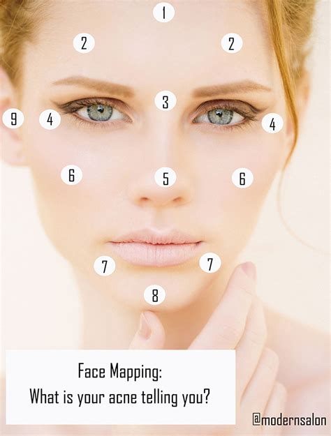 mapping acne mapping what are your acne breakouts telling you career modern salon