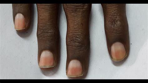 Half And Half Nail Designs