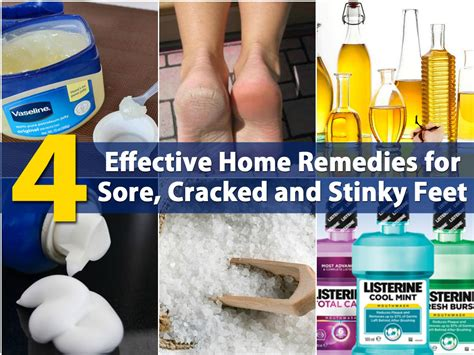 Cures For Your Summer Shoe by Sore Cracked Heels Downloadrisk
