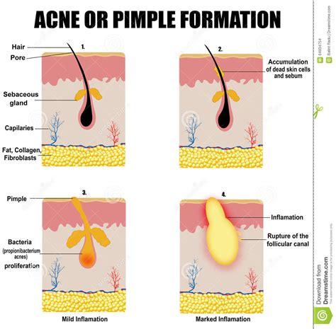 Blind Spot Under Skin Acne Formation Process Cartoon Vector Cartoondealer Com