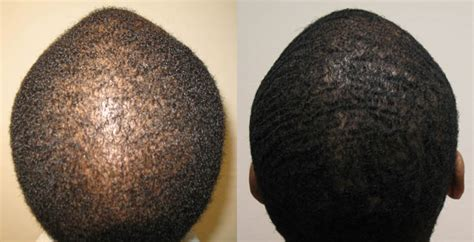 african american hair transplant african american hair transplant patients page dr brett