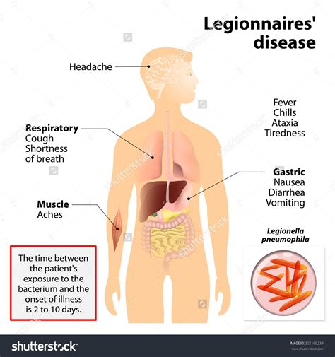 pontiac fever symptoms legionnaires disease symptoms applecool info