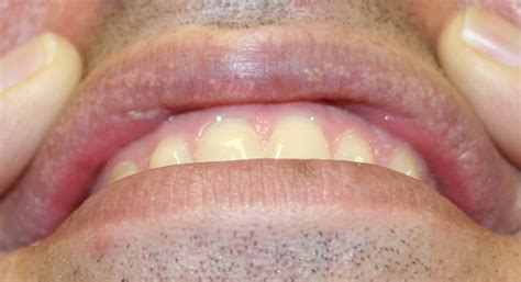 spot remedy fordyce spots causes symptoms treatment home remedies pictures diseases pictures