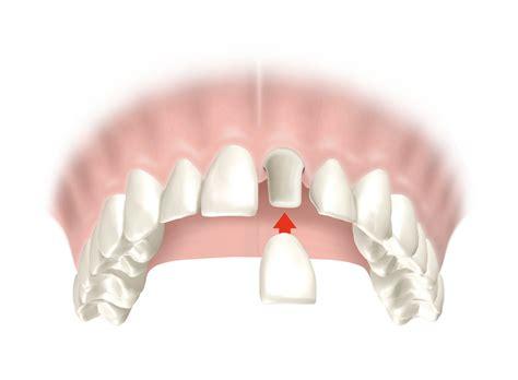 funda diente 191 qu 233 es una funda dental