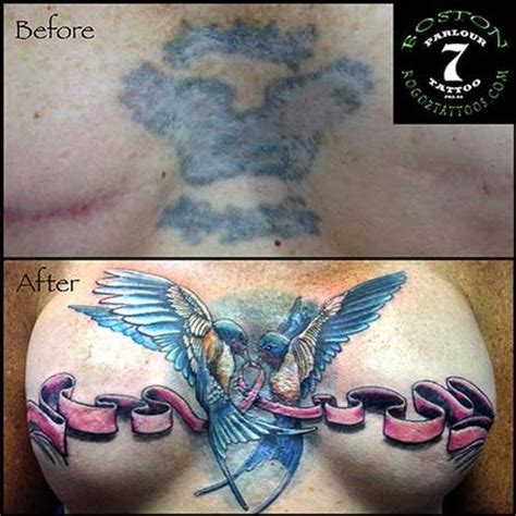 breast removal tattoos mastectomy scar cover up by boston rogoz tattoos
