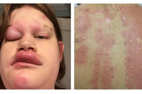 nichel allergia alimentare 31 allergic reactions that actually hurt to look at