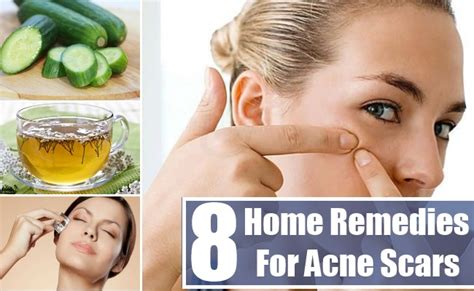 home remedies for acne scars 28 images traditional