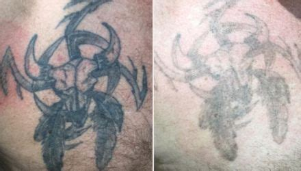 tattoo removal on the nhs laser removal in plymouth south at whiteroom