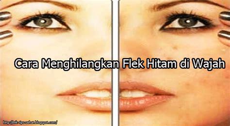 cara mudah menghilangkan bintik flek hitam di wajah secara cara mudah menghilangkan flek hitam di wajah alami