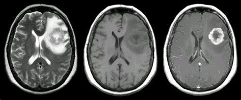 melanoma brain metastasis mri breast ca 4