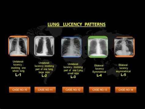 pattern recognition x rays chest x ray interpretation by a pattern recognition method