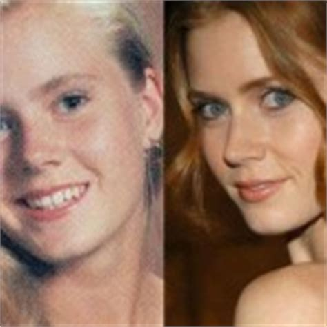 did amy carlson get plastic surgery amy adams plastic surgery for more beautiful face