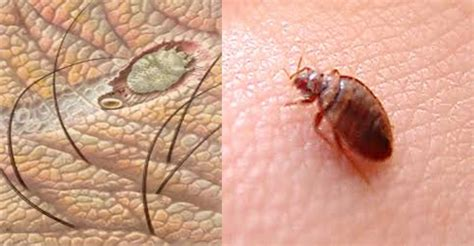 causes of bed bugs can bedbugs cause scabies best scabies treatment dr