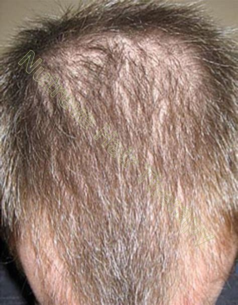20 month old hair thinning on top laser hair combs do not work find out why nutreve