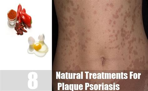 the 25 best plaque psoriasis ideas on