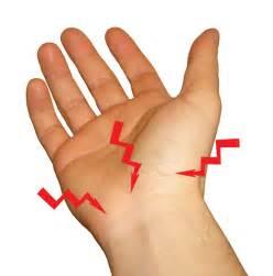 schmerzen in der handfläche handgelenkschmerzen schmerzen im handgelenk