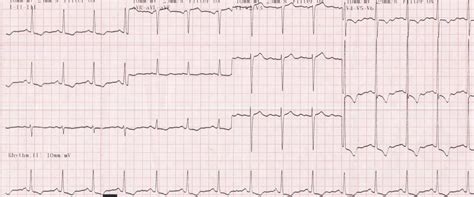 lvh pattern cardiophile md archive cardiophile md archive page 2