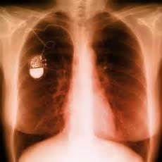 Photograph of an x ray of the chest showing a pacemaker