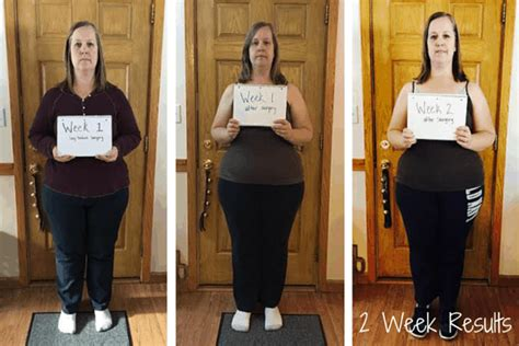 weight loss 6 weeks after gastric sleeve week 2 gastric sleeve results