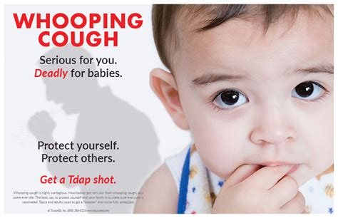 whopping couch whooping cough images reverse search