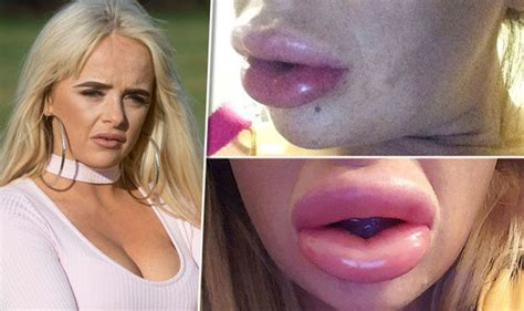 lip implants gone wrong lip fillers left mum hospitalised and with sausage lips