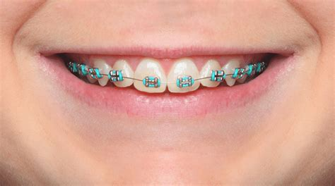 what color should i get my braces what color braces should i get next chapman