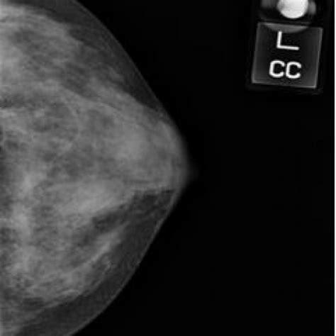 primary  hodgkins lymphoma   breast eurorad