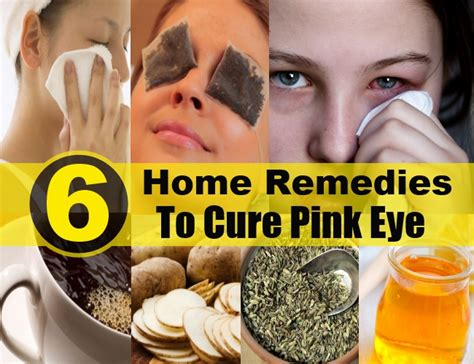 6 excellent home remedies to cure pink eye diy health remedy