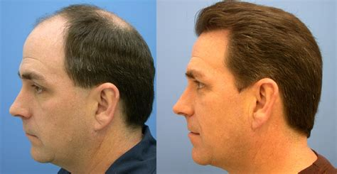 best hairtransplant in the world hair transplant skin life clinic