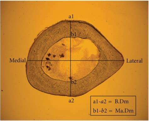 cross section of femur fig2 the effects of parathyroid hormone applied at