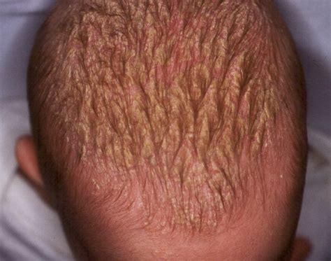 granos en el cuero cabelludo dermatologia dermatitis seborreica