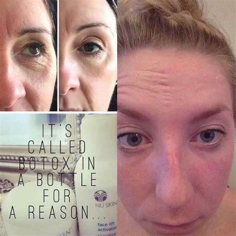 The War Of The Wrinkle Fillers by 1000 Ideas About Botox Results On Botox
