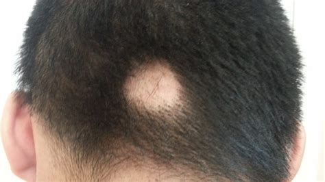 bald spot on bald spot on back of there s a single bald spot at the back of my with modern