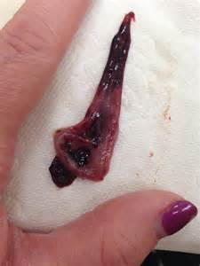 Period blood clots related keywords period blood clots long tail