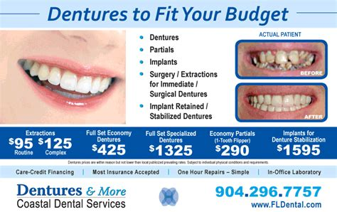 What Do Dentures Cost   New Car Relese 2018 2019